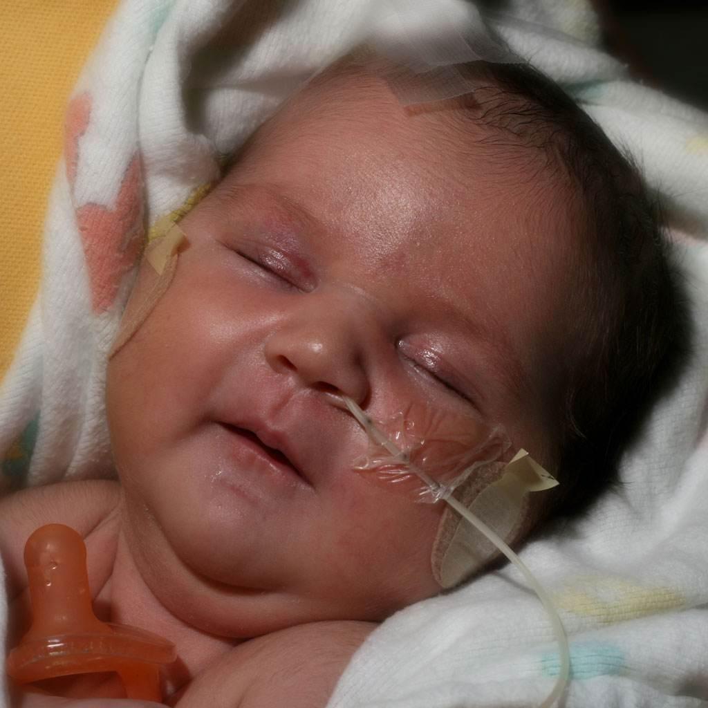 bebelus prematur (http://theasianparent.com)