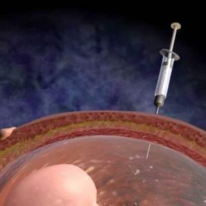 amniocenteza (www.razboiintrucuvant.ro)